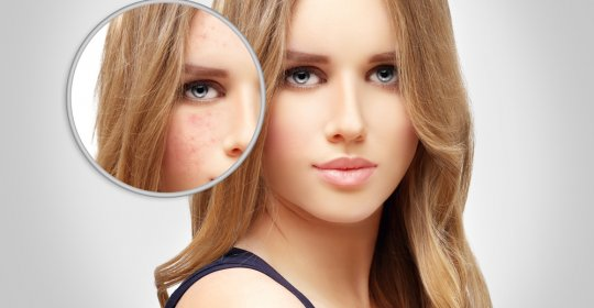 Cum sa prevenim acneea de pe fata in mod natural